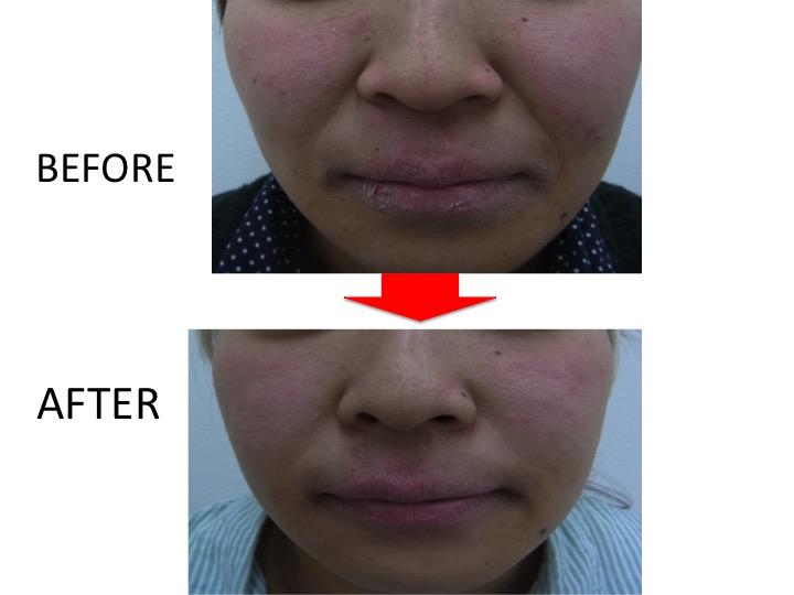 肌質改善専門サロンの切らないほうれい線対策 | 【公式】肌能力回復フェイシャルスタイリストサロンの画像