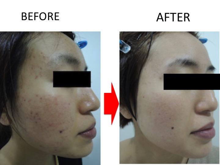 わずか1ヶ月でこの変化!ニキビ跡・毛穴の変化 | 【公式】肌能力回復フェイシャルスタイリストサロンの画像