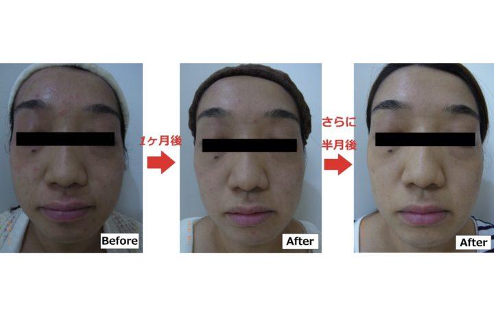 アトピー性皮膚炎のお悩み、諦めないで | 【公式】肌能力回復フェイシャルスタイリストサロンの画像