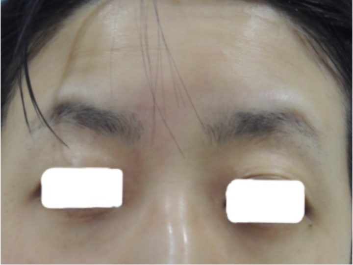 敏感肌・かぶれの改善症例 | 【公式】肌能力回復フェイシャルスタイリストサロンの画像