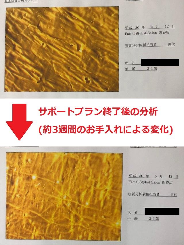 新宿でニキビ肌を変えるならFSS | 【公式】肌能力回復フェイシャルスタイリストサロンの画像