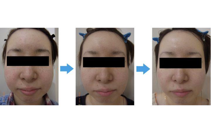 【実録】毛穴の開きが改善!方法はたった3つのこと | 【公式】肌能力回復フェイシャルスタイリストサロンの画像