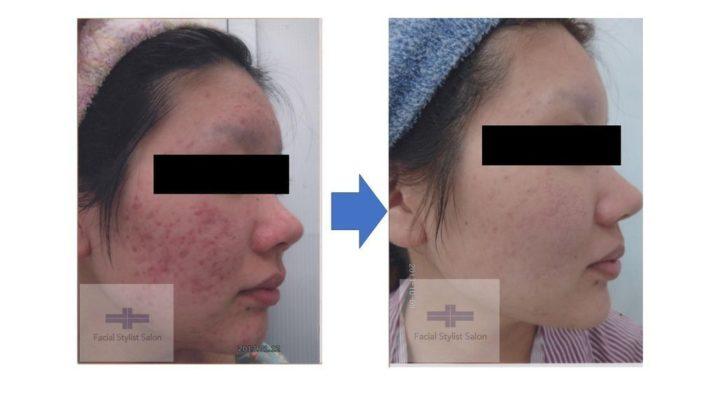 皮膚科でも良くならなかったニキビ、ニキビ跡が綺麗に! | 【公式】肌能力回復フェイシャルスタイリストサロンの画像