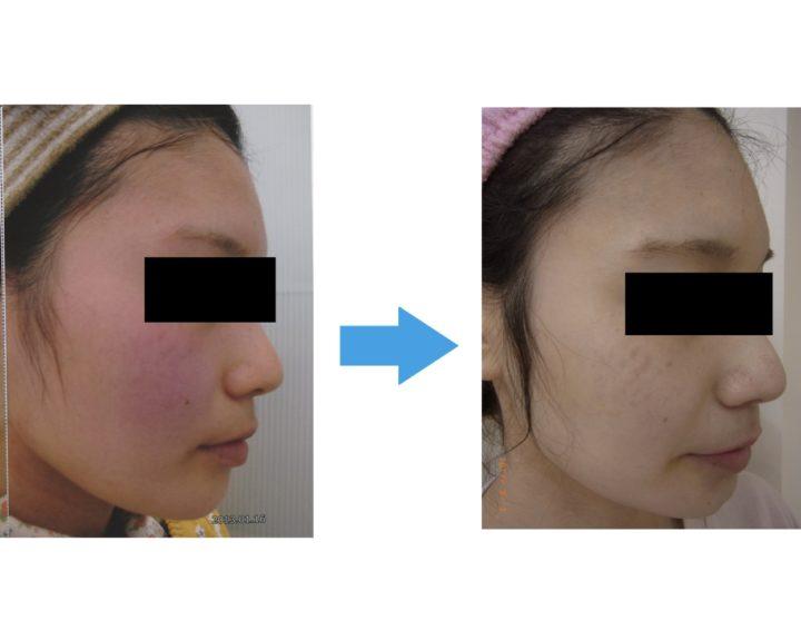 赤ら顔・敏感肌が劇的変化! | 【公式】肌能力回復フェイシャルスタイリストサロンの画像